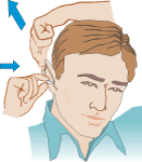 CDC graphic for how to pull back the ear to insert an ear plug more easily