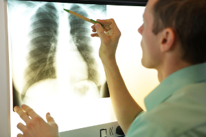 Person looking at a lung x-ray