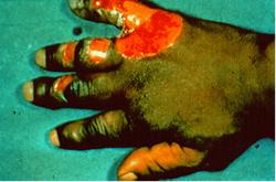 Frostbitten hand