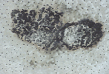 Mold on ceiling tile