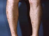 duas pernas exibindo picadas de formigas