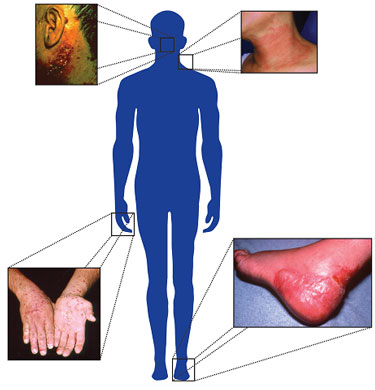 Silhouette of person showing area of skin diseases