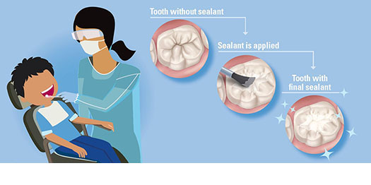 School-based programs are one way to reach millions of children with sealants to prevent cavities.