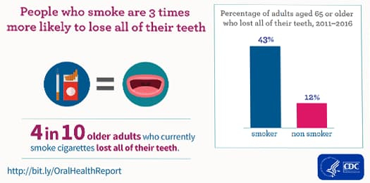 People who smoke are 3 times more likely to lose all of their teeth