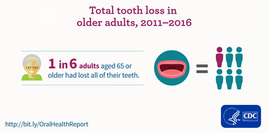 Total tooth loss in older adults, 2011-2016
