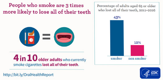 Percentage of adults aged 65 or older who lost their teeth, 2011-2016