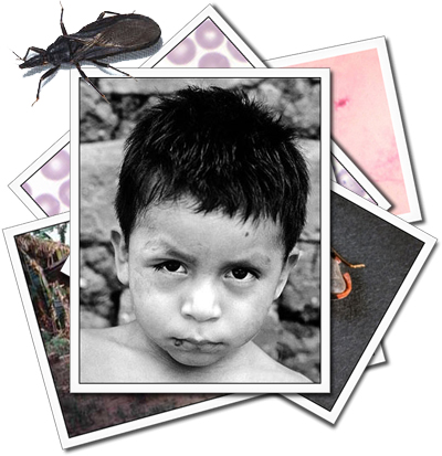A stack of photos related to Chagas Disease with a picture of a boy with obvious symptoms on the top.