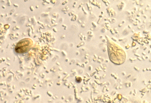 Giardia trophozoites and cysts under a microscope.