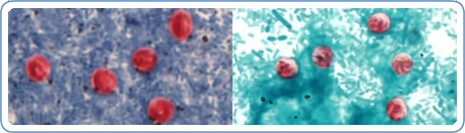 Left: Cryptosporidium sp. oocysts stained with Ziehl-Neelson modified acid-fast. | Right: Cryptosporidium sp. oocysts stained with safranin.