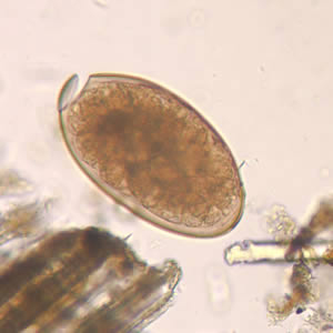 Parasite Eggs In Human Stool http://www.cdc.gov/parasites/fasciola/diagnosis.html