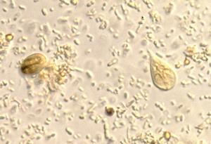 A Giardia trophozoite next to a Giardia cyst.