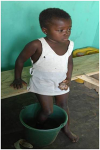 Child immersing foot in water to ease pain and hasten worm emergence. Photo credit:   Louise Gubb, 2007, The Carter Center.