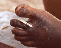 Guinea worm extraction. Photo credit: Emily Staub, 2001, The Carter Center.