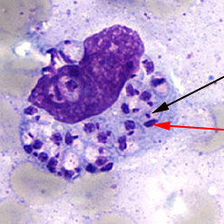 Light-microscopic examination of a stained bone marrow specimen from a patient with visceral leishmaniasis—showing a macrophage containing multiple Leishmania amastigotes.