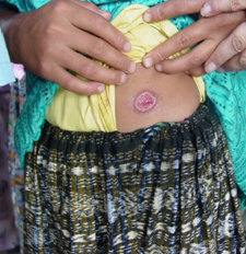 Ulcerative skin lesion, with a raised outer border, on a Guatemalan patient who has cutaneous leishmaniasis. (Credit: B. Arana, MERTU, Guatemala)