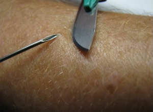 Image of a physician taking a skin sample from a patient for a skin snip biopsy by elevating a piece of skin with a needle and shaving it off with a scalpel.