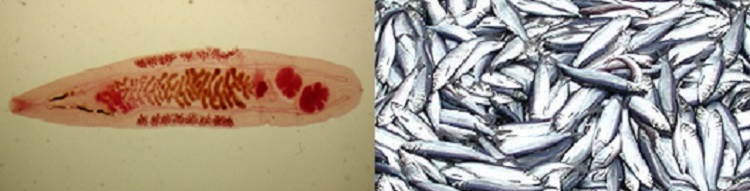 L: Adult of O. felineus. R: A large group of fish. Fish do not have to ingest anything because the parasite can encyst under the scales or in flesh. Eating infected fish can result in Opisthorchis infection
