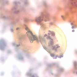 Eggs of P. kellicotti in a Pap-stained bronchial alveolar lavage
