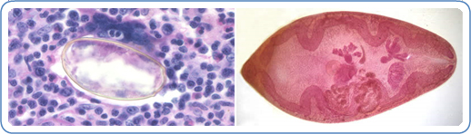 Image: Left: Eggs of Paragonimus sp. taken from a lung biopsy stained with hematoxylin and eosin (H&E). These eggs measured 80-90  µm  by 40-45  µm. The species was not identified in this case. Right: P. westermani adult, this approximately 1cm long fluke is viewed under magnification. Credit: DPDx