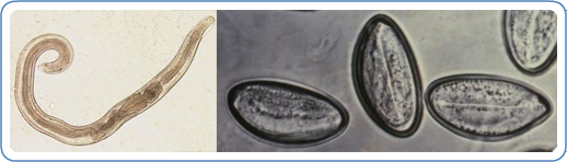 Left: Adult male of E. vermicularis from a formalin-ethyl acetate (FEA) concentrated stool smear. The worm measured 1.4 mm in length. Image courtesy of Centre for Tropical Medicine and Imported Infectious Diseases. Right: Image of the eggs of the human parasite Enterobius vermicularis, or 'human pinworm', captured on cellulose tape under significant magnification.