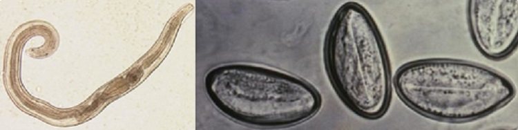 enterobius vermicularis icd 10)