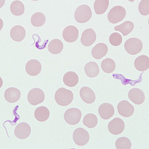 Trypomastigotes of T. brucei ssp. in a blood smear stained with Giemsa.