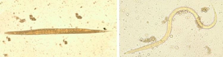 Image: Left: Adult free-living female S. stercoralis. Notice the row of eggs within the female's body. Right: Filariform (L3) larva of S. stercoralis in an unstained wet mount.