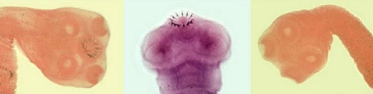 Strongyloidosis és teniosis - 1. tipp: Hogyan kell inni a Vermoxot?, Teniasis strongyloidosis mi ez
