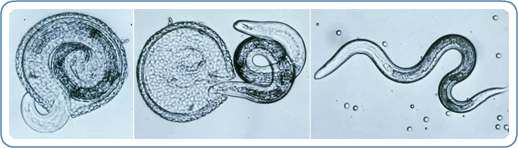 Various stages of Toxocara canis larva hatching.
