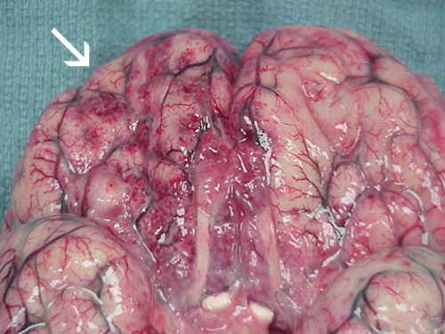 Extensive hemorrhage and necrosis is present in the brain, mainly in the frontal cortex.