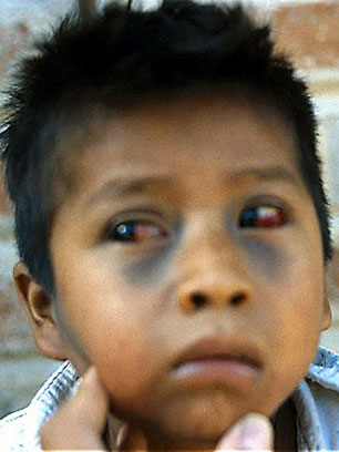 Child with broken blood vessels in eyes and bruising on face due to pertussis coughing.