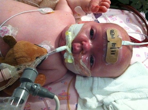 Image three - Infant being treated for severe pertussis infection