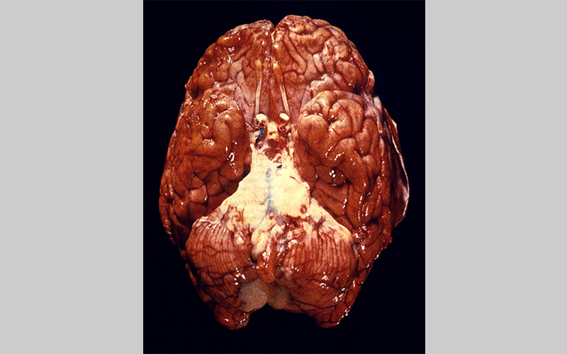Ventral view of a human brain depicts a purulent basilar meningitis infection due to Streptococcus pneumoniae bacteria