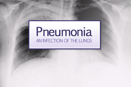 Chest x-ray of an adult patient with pneumonia