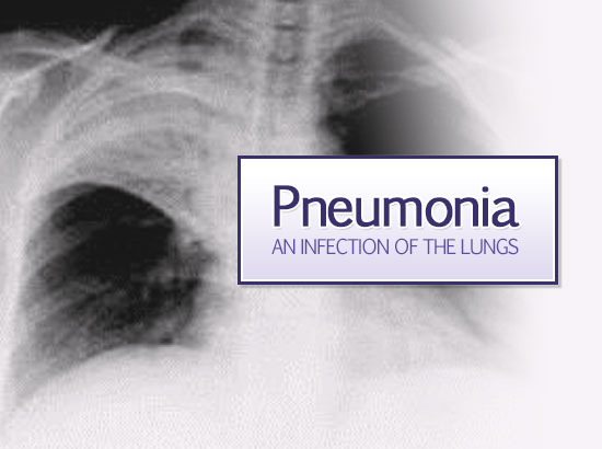 Chest x-ray of an adult patient with pneumonia.
