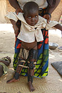 A young girl with leg braces following poliomyelitis, Chad (Photo by Minal Patel, STOP volunteer).