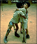 Boys with leg deformities following polio.