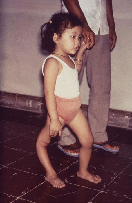 A child with a deformity of her right leg caused by poliovirus infection.
