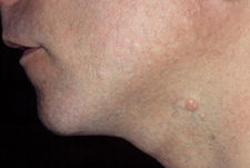 Typical molluscum lesion. Note the pearly appearance and the dimple in the center of the bumps. Image courtesy L. Sperling, MD, Walter Reed Army Medical Center.