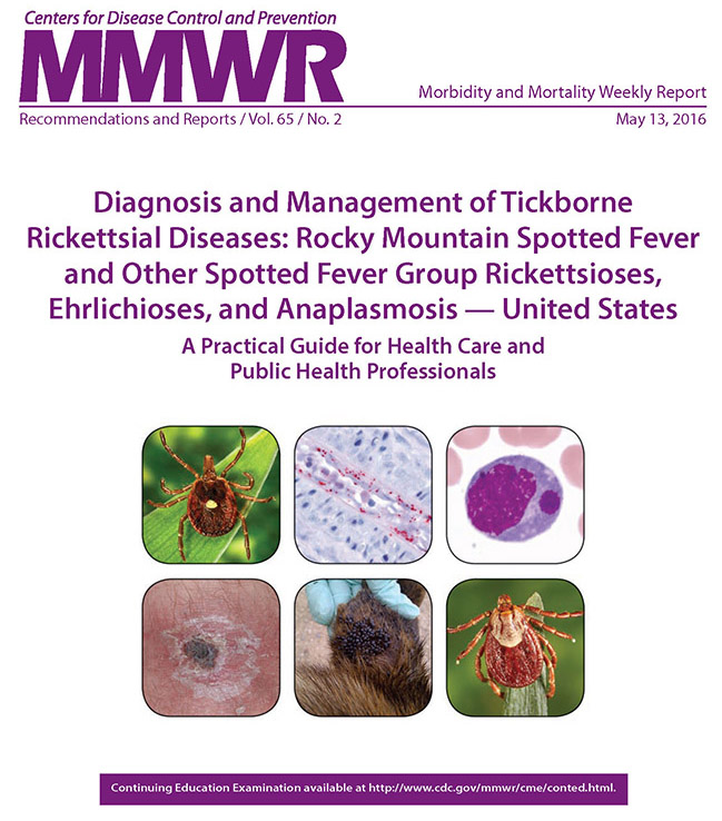 Rocky mountain spotted fever research paper