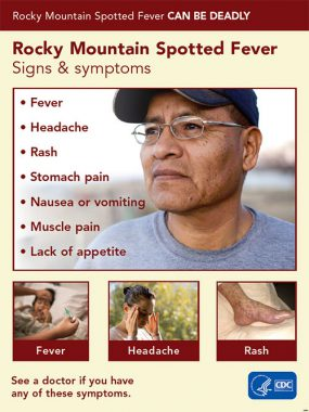 Poster: Rocky Mountain Spotted Fever can be deadly. RMSF signs and symptoms: Fever, Headache, Rash, Stomach pain, Nausea or vomiting, Muscle Pain, Lack of appetite.  See a doctor if you have any of these symptoms