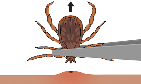 Clip art image of a tick being pulled from skin by a pair of tweezers.