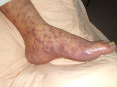 Rocky Mountain Spotted Fever rash on foot