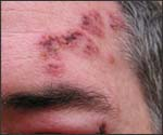 Fresh Shingles; facial rash with swollen eyelids.