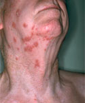 Shingles rash on face and neck.