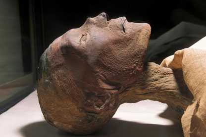 Traces of smallpox pustules found on the head of a 3000 year-old mummy of the Pharaoh Ramses V. Photo courtesy of World Health Organization (WHO)