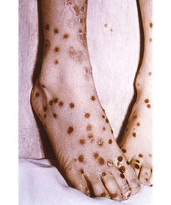 "Feet of patient with modified-type smallpox. There is a ""cropping"" of the lesions in their distribution pattern. The rash resembles varicella. Source: CDC/Dr. Robinson."