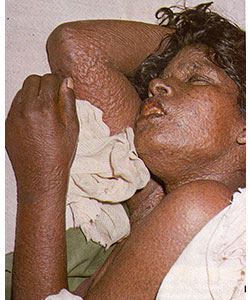 Woman with flat-type smallpox on 6th day of the rash. Image shows crepe-like lesions on her arms, hands, neck, and face. Source: Fenner F, Henderson DA, Arita I, Ježek Z, Ladnyi ID. Smallpox and its eradication. Geneva, Switzerland: World Health Organization; 1988 (p.33)