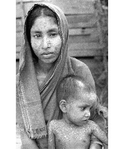 This mother and child have scars after surviving smallpox. The scars match the distribution pattern of smallpox. Source: CDC/Stanley O. Foster.