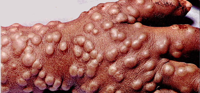 Image result for smallpox